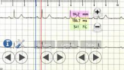 ECG pratico modern screenshot 5/6