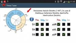 ECG pratico optional screenshot 5/6