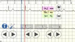 ECG pratico optional screenshot 6/6