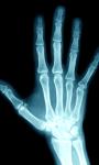 Human X Ray Scanner screenshot 1/6