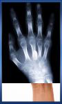 Human X Ray Scanner screenshot 2/6
