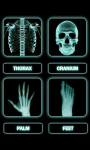 Human X Ray Scanner screenshot 5/6