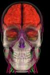 3D Brain MRI screenshot 1/1