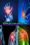 Rheumatism Disease screenshot 1/3