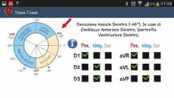 ECG pratico opened screenshot 4/6
