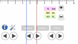 ECG pratico opened screenshot 6/6